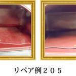 リペア例205:シャネル(カーフ)1本手ハンドバッグ ブラック
